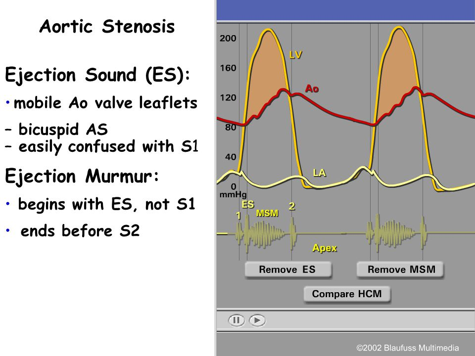The murmur is dependent on the pressure difference across the aortic valve: Left ventricular pressure - Aortic pressure The murmur begins upon aortic
