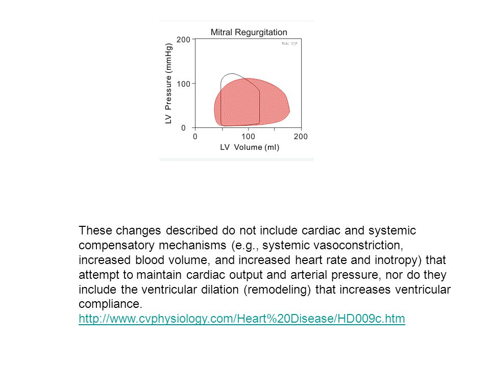 Mitral regurgitation Murmur depends on pressure difference across the mitral valve  P = LV – LA pressure  P remains large and relatively constant du