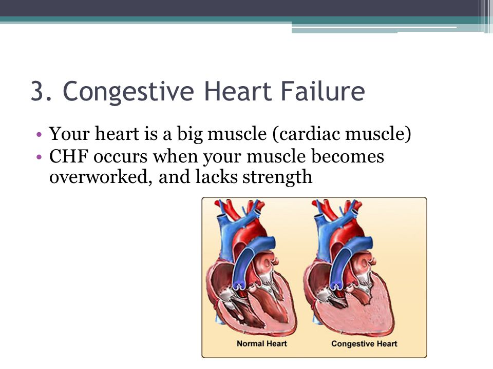3. Congestive Heart Failure Your heart is a big muscle (cardiac muscle) CHF occurs when your muscle becomes overworked, and lacks strength