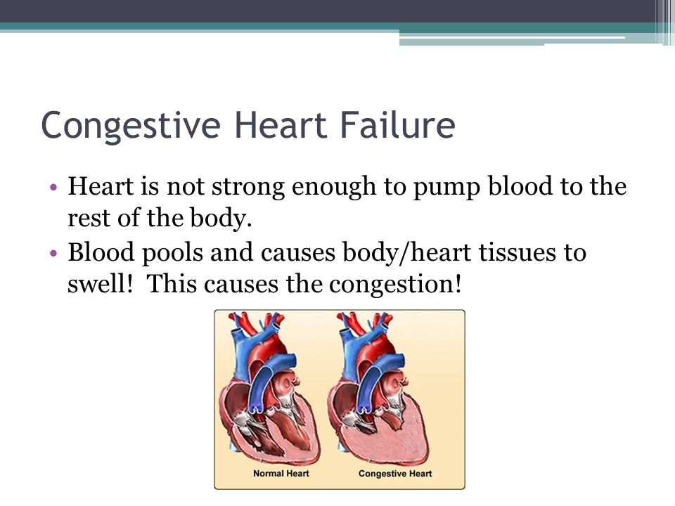 Congestive Heart Failure Heart is not strong enough to pump blood to the rest of the body.