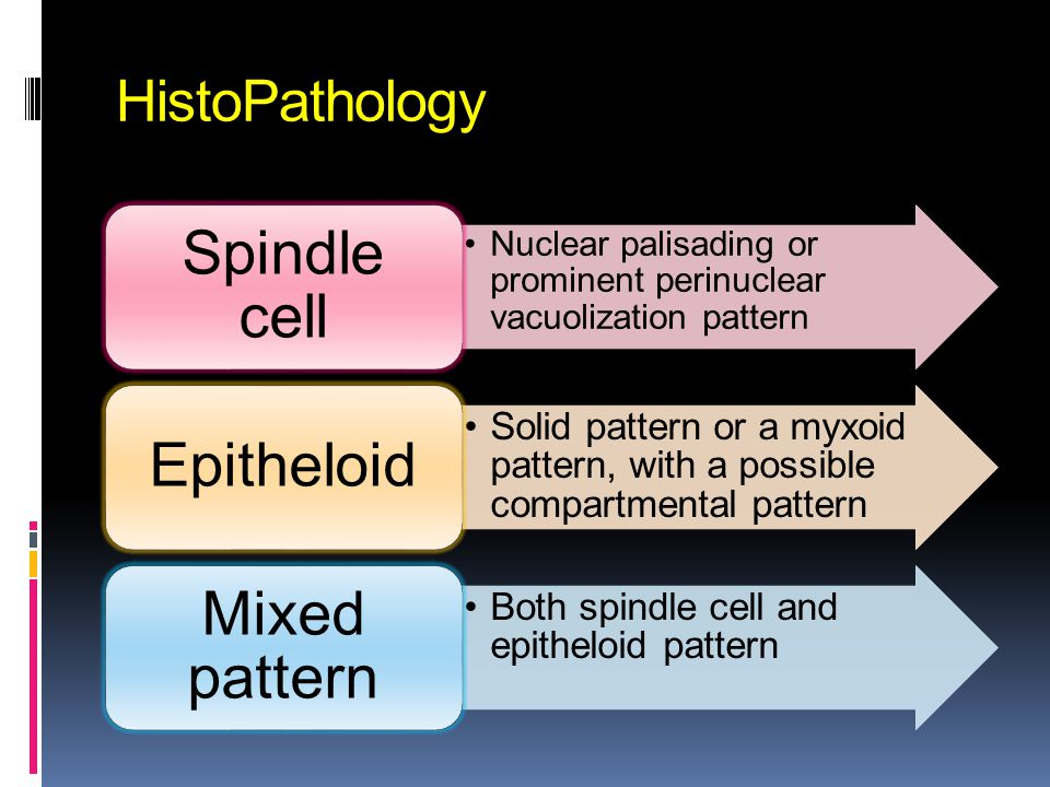 HistoPathology Nuclear palisading or prominent perinuclear vacuolization pattern Spindle cell Solid pattern or a myxoid pattern, with a possible compa