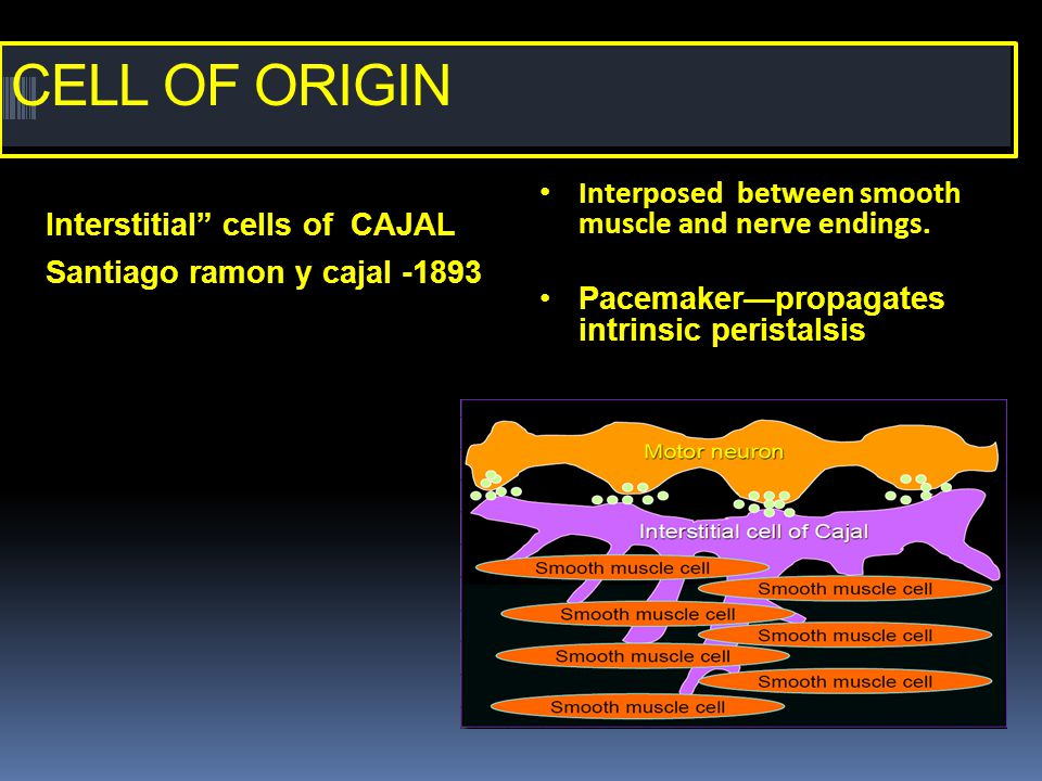 "CELL OF ORIGIN Interstitial"" cells of CAJAL Santiago ramon y cajal -1893 Interposed between smooth muscle and nerve endings. Pacemaker—propagates intr"