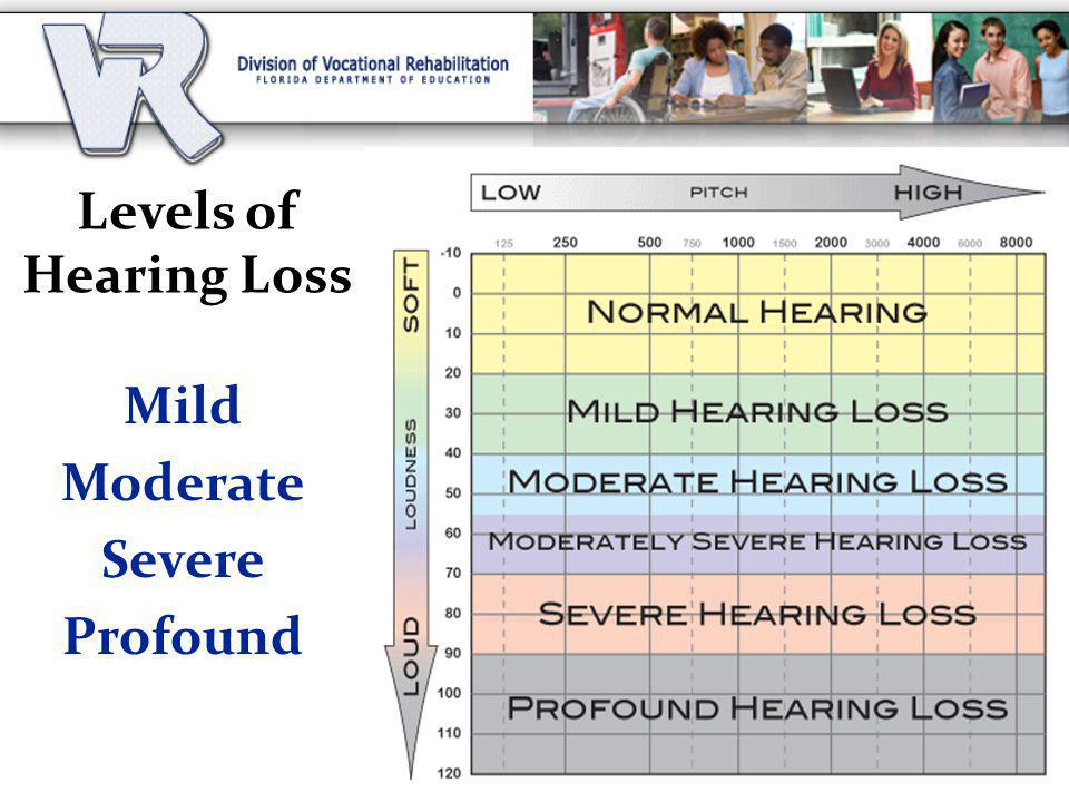 Levels of Hearing Loss Mild Moderate Severe Profound