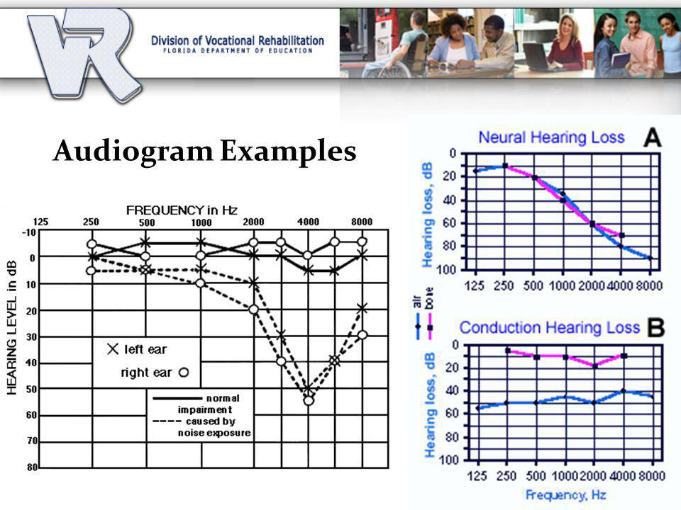 Audiogram Examples