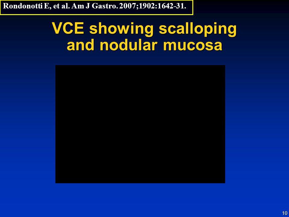 10 VCE showing scalloping and nodular mucosa Rondonotti E, et al. Am J Gastro. 2007;1902:1642-31.