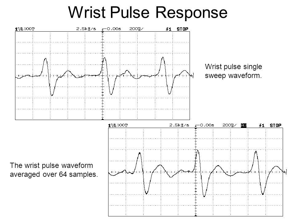 Wrist Pulse Response Wrist pulse single sweep waveform. The wrist pulse waveform averaged over 64 samples.