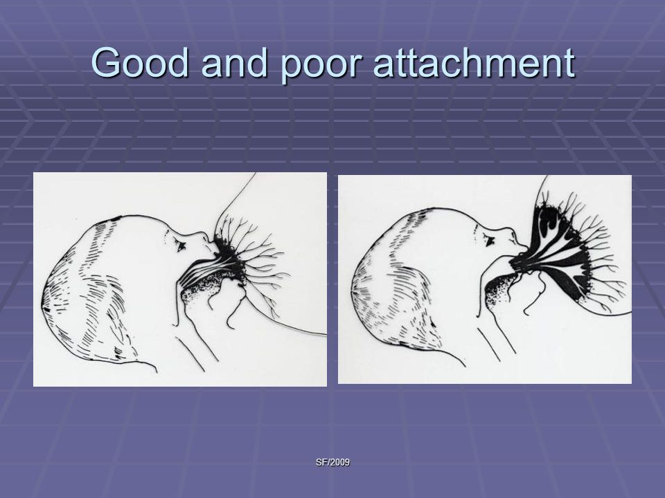 SF/2009 Good and poor attachment
