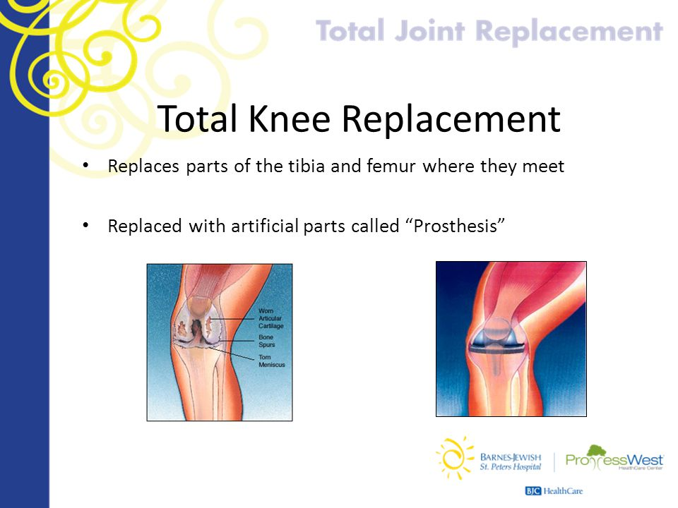 """Total Knee Replacement Replaces parts of the tibia and femur where they meet Replaced with artificial parts called """"Prosthesis"""""""