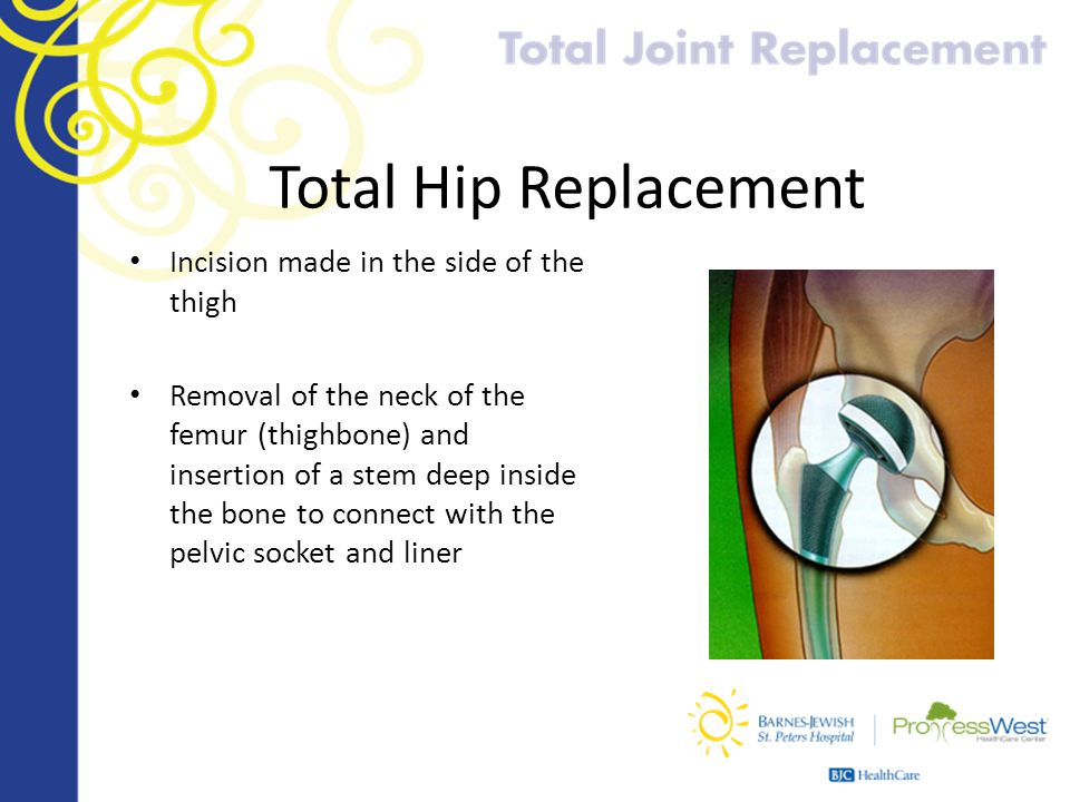 Total Hip Replacement Incision made in the side of the thigh Removal of the neck of the femur (thighbone) and insertion of a stem deep inside the bone