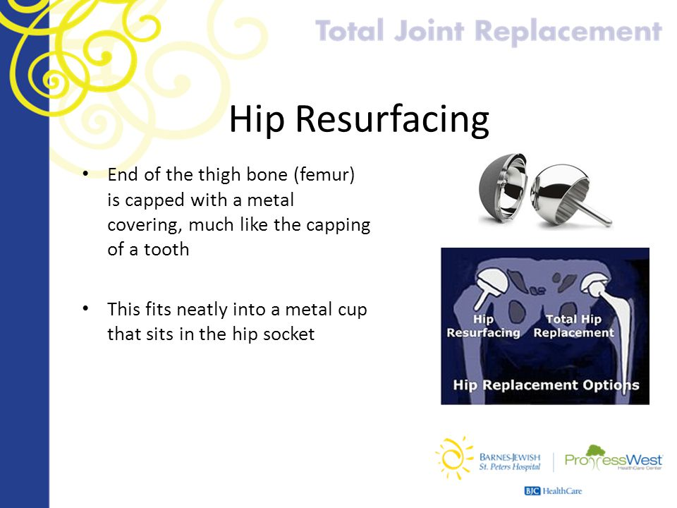 Hip Resurfacing End of the thigh bone (femur) is capped with a metal covering, much like the capping of a tooth This fits neatly into a metal cup that