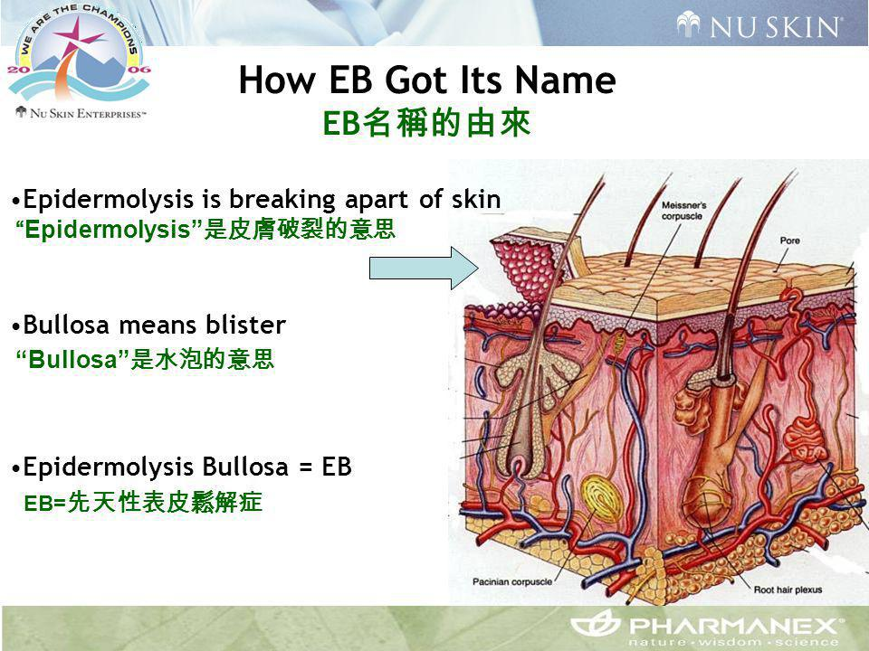 "Epidermolysis is breaking apart of skin ""Epidermolysis"" 是皮膚破裂的意思 Bullosa means blister ""Bullosa"" 是水泡的意思 Epidermolysis Bullosa = EB EB= 先天性表皮鬆解症 How EB"