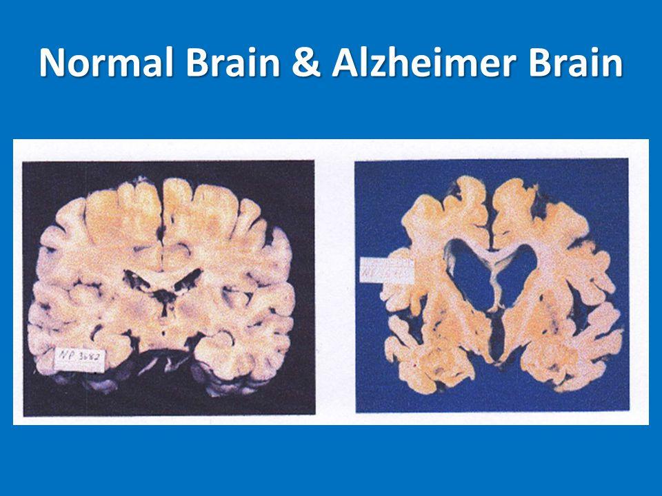 Normal Brain & Alzheimer Brain