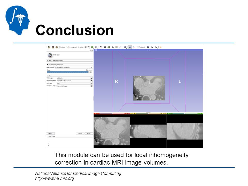 National Alliance for Medical Image Computing http://www.na-mic.org Conclusion This module can be used for local inhomogeneity correction in cardiac MRI image volumes.