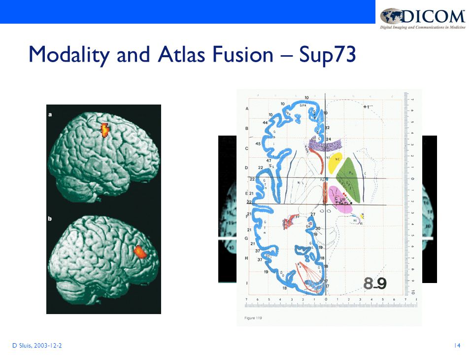 D Sluis, 2003-12-214 Modality and Atlas Fusion – Sup73