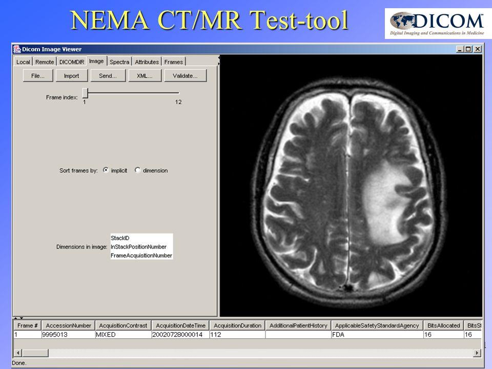 11 NEMA CT/MR Test-tool