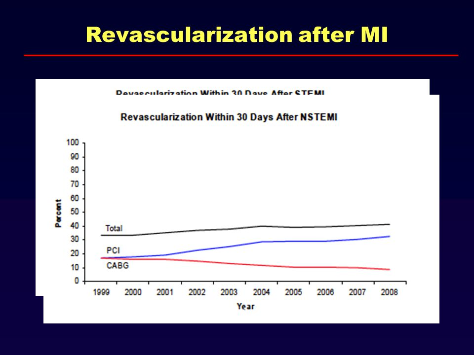 Revascularization after MI