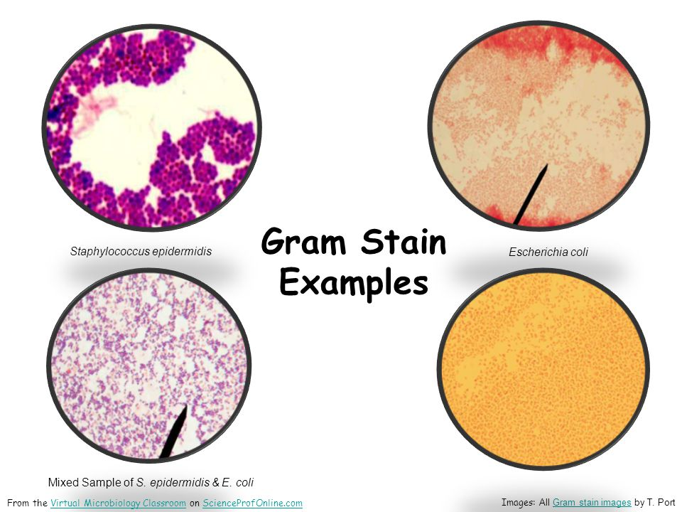 Gram Stain Examples Staphylococcus epidermidis Escherichia coli Mixed Sample of S.