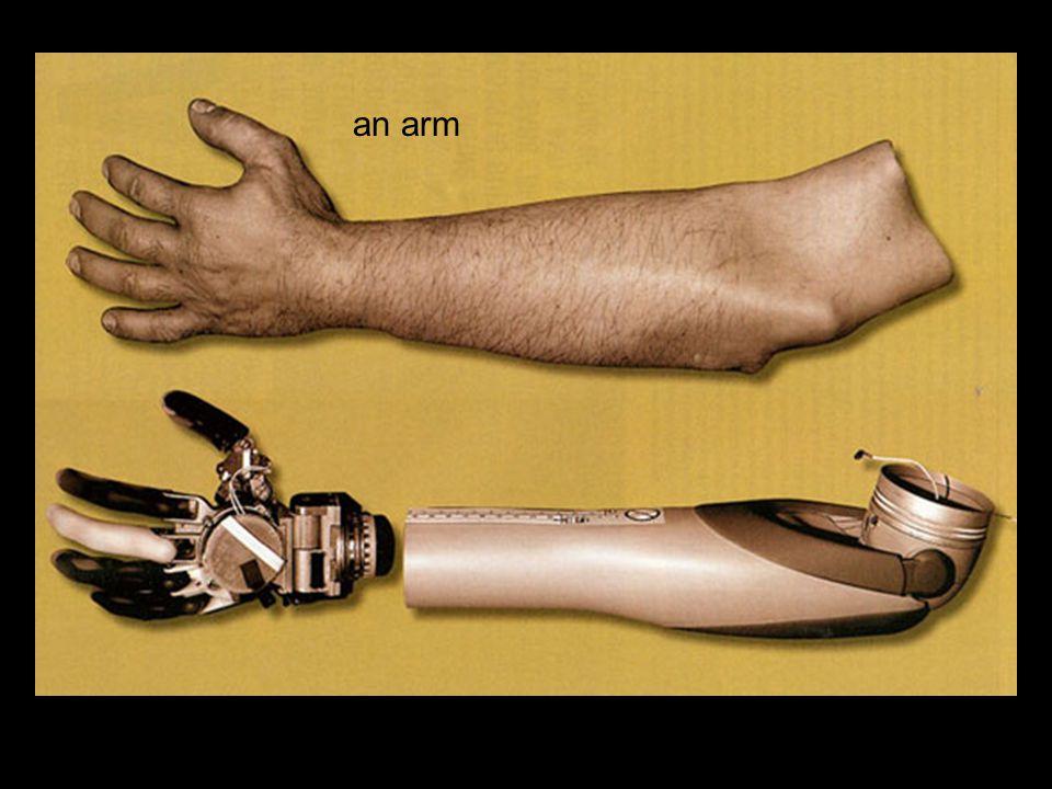 an arm
