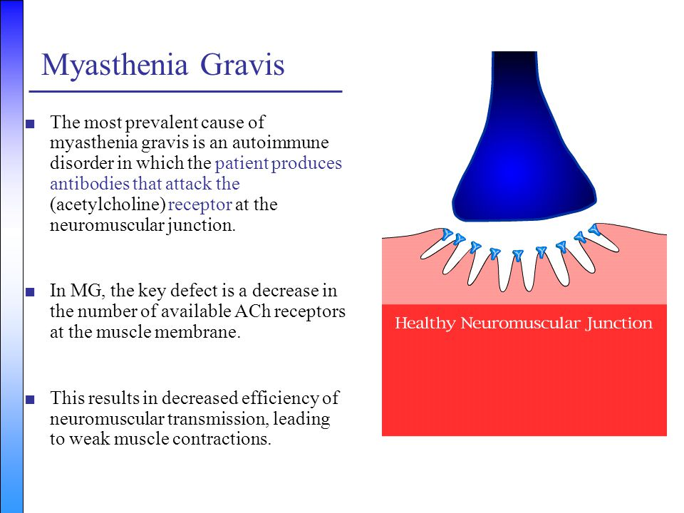 Myasthenia Gravis ■The most prevalent cause of myasthenia gravis is an autoimmune disorder in which the patient produces antibodies that attack the (a