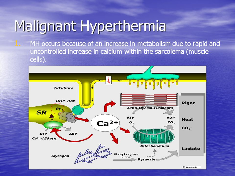 Malignant Hyperthermia 1. 1. MH occurs because of an increase in metabolism due to rapid and uncontrolled increase in calcium within the sarcolema (mu