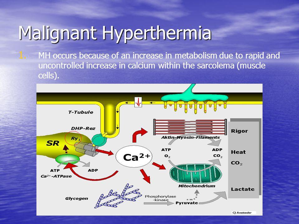 Malignant Hyperthermia 1.1.