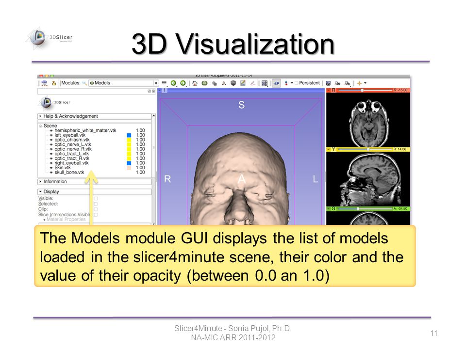 3D Visualization Slicer4Minute - Sonia Pujol, Ph.D.