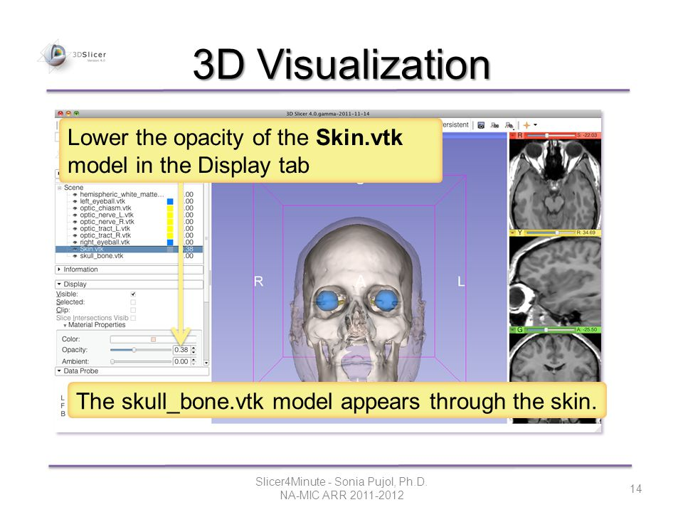 3D Visualization The skull_bone.vtk model appears through the skin.