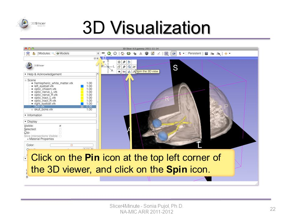 Visualization 3D Visualization Slicer4Minute - Sonia Pujol, Ph.D.