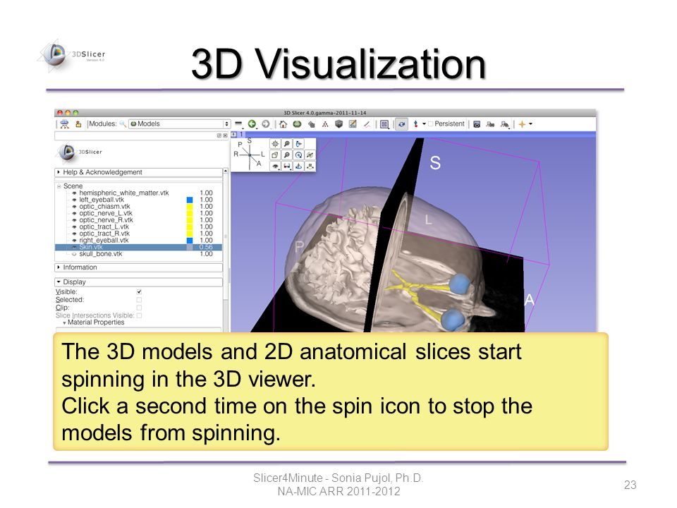 3D Visualization The 3D models and 2D anatomical slices start spinning in the 3D viewer.