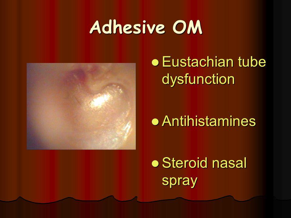 Adhesive OM Eustachian tube dysfunction Eustachian tube dysfunction Antihistamines Antihistamines Steroid nasal spray Steroid nasal spray