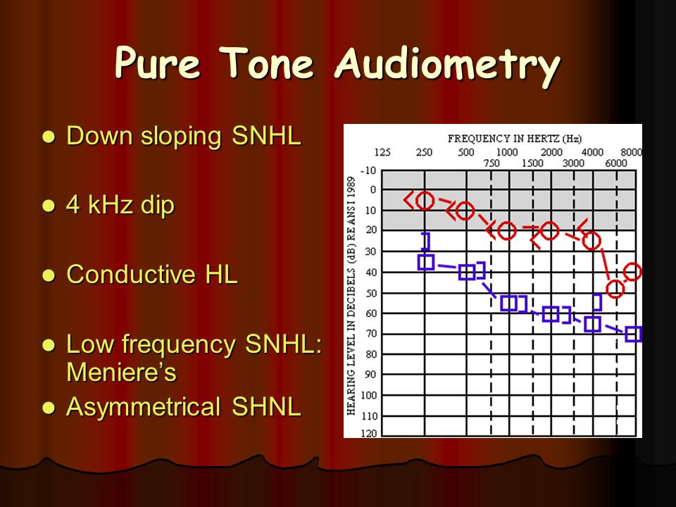 Down sloping SNHL Down sloping SNHL 4 kHz dip 4 kHz dip Conductive HL Conductive HL Low frequency SNHL: Meniere's Low frequency SNHL: Meniere's Asymme