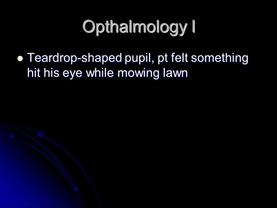 Opthalmology I Teardrop-shaped pupil, pt felt something hit his eye while mowing lawn Teardrop-shaped pupil, pt felt something hit his eye while mowing lawn
