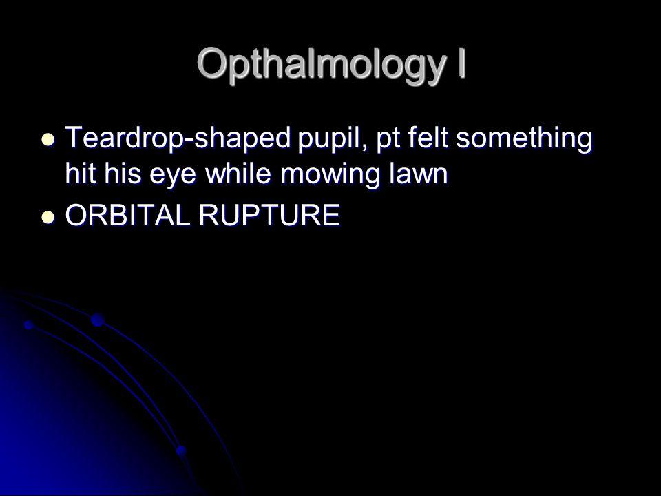 Opthalmology I Teardrop-shaped pupil, pt felt something hit his eye while mowing lawn Teardrop-shaped pupil, pt felt something hit his eye while mowing lawn ORBITAL RUPTURE ORBITAL RUPTURE