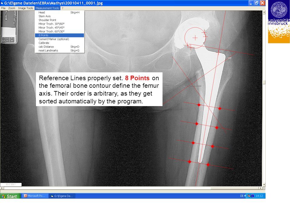 Reference Lines properly set. 8 Points on the femoral bone contour define the femur axis. Their order is arbitrary, as they get sorted automatically b