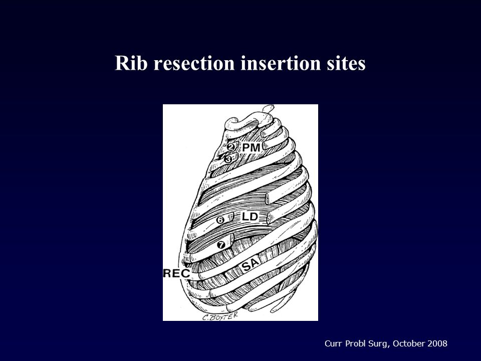 Rib resection insertion sites Curr Probl Surg, October 2008