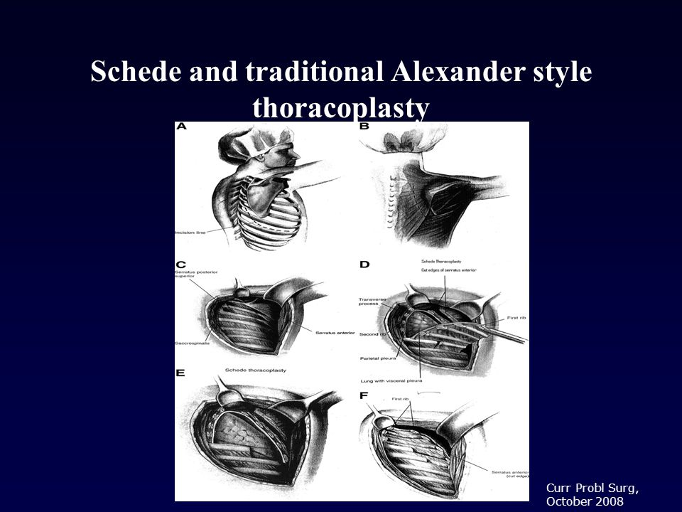 Schede and traditional Alexander style thoracoplasty Curr Probl Surg, October 2008