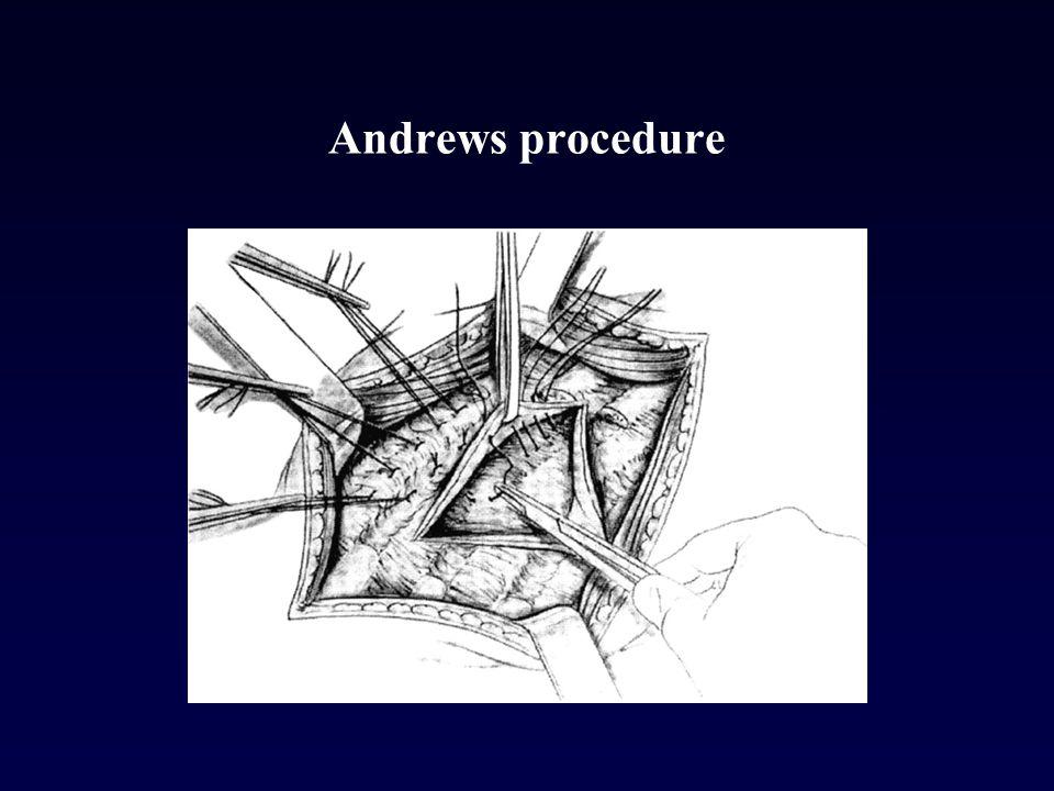 Andrews procedure