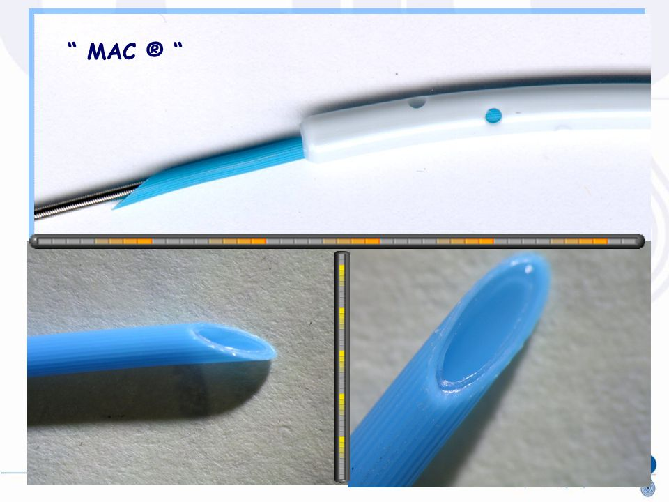CVC Metallic guidewire MAC ® Plain stylet Striped MAC ® stylet