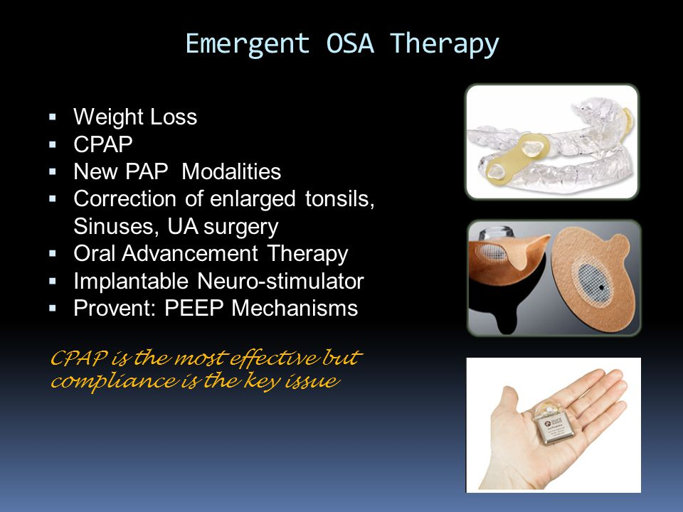 Emergent OSA Therapy  Weight Loss  CPAP  New PAP Modalities  Correction of enlarged tonsils, Sinuses, UA surgery  Oral Advancement Therapy  Impl