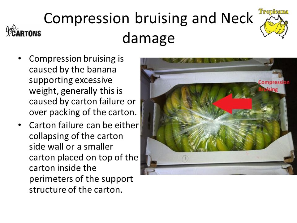 Compression bruising and Neck damage Compression bruising is caused by the banana supporting excessive weight, generally this is caused by carton failure or over packing of the carton.