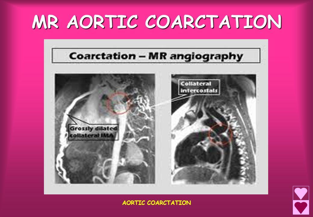 MR AORTIC COARCTATION AORTIC COARCTATION
