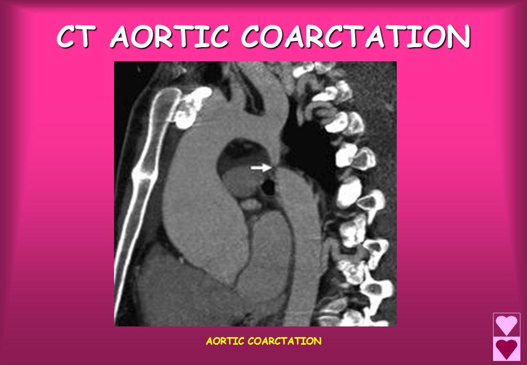 CT AORTIC COARCTATION AORTIC COARCTATION