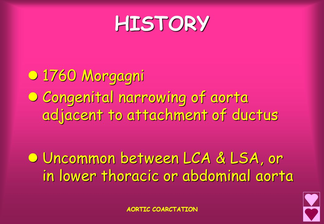 HISTORY 1760 Morgagni 1760 Morgagni Congenital narrowing of aorta adjacent to attachment of ductus Congenital narrowing of aorta adjacent to attachment of ductus Uncommon between LCA & LSA, or in lower thoracic or abdominal aorta Uncommon between LCA & LSA, or in lower thoracic or abdominal aorta AORTIC COARCTATION