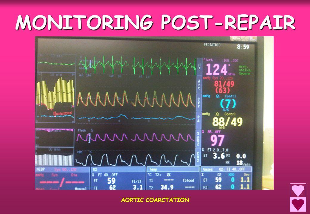 MONITORING POST-REPAIR AORTIC COARCTATION
