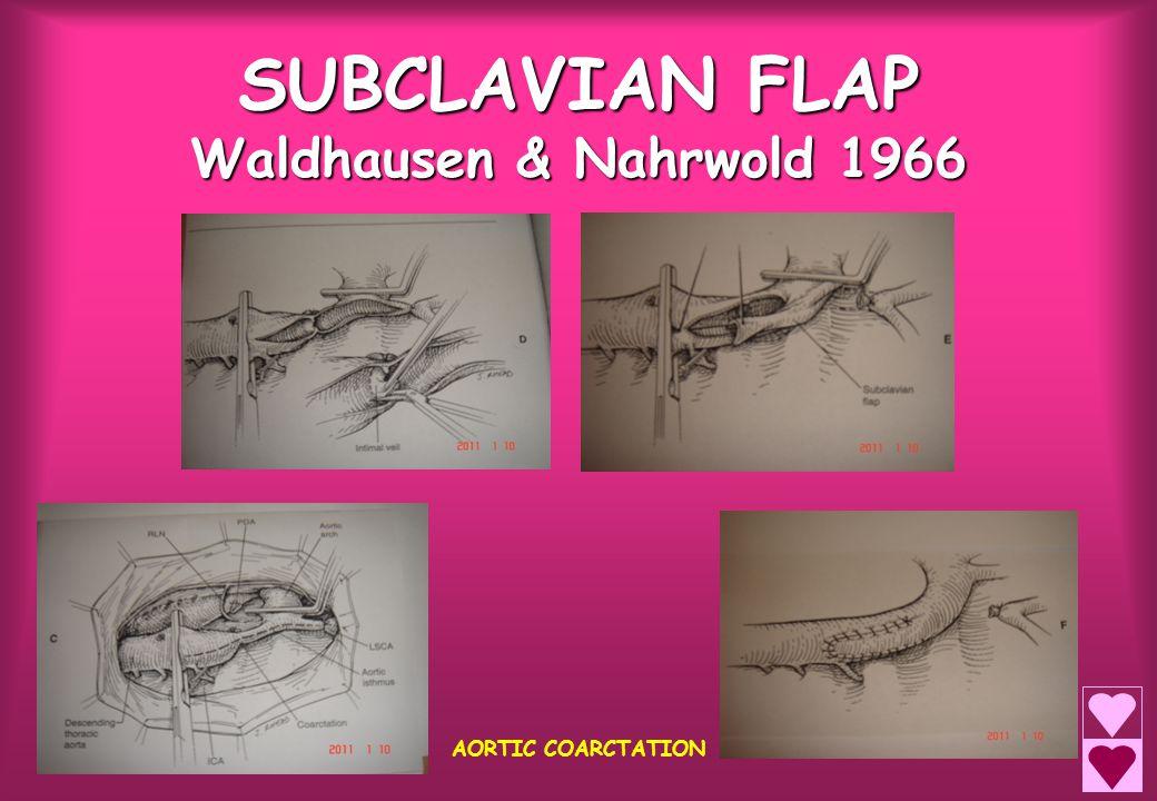 SUBCLAVIAN FLAP Waldhausen & Nahrwold 1966 AORTIC COARCTATION
