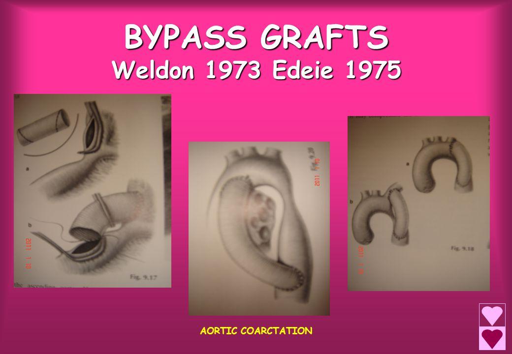 BYPASS GRAFTS Weldon 1973 Edeie 1975 AORTIC COARCTATION