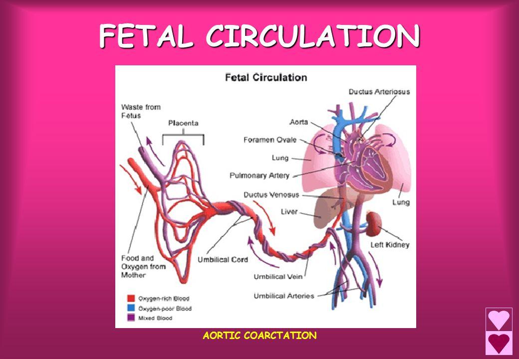 FETAL CIRCULATION AORTIC COARCTATION
