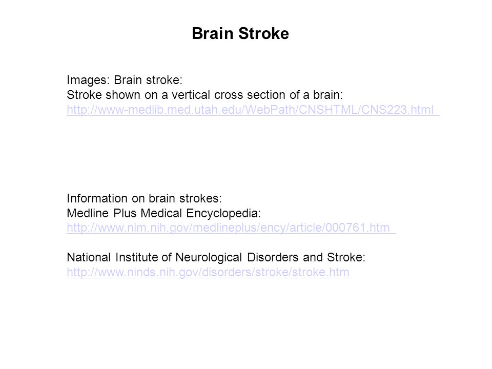 Brain Stroke Images: Brain stroke: Stroke shown on a vertical cross section of a brain: http://www-medlib.med.utah.edu/WebPath/CNSHTML/CNS223.html Inf