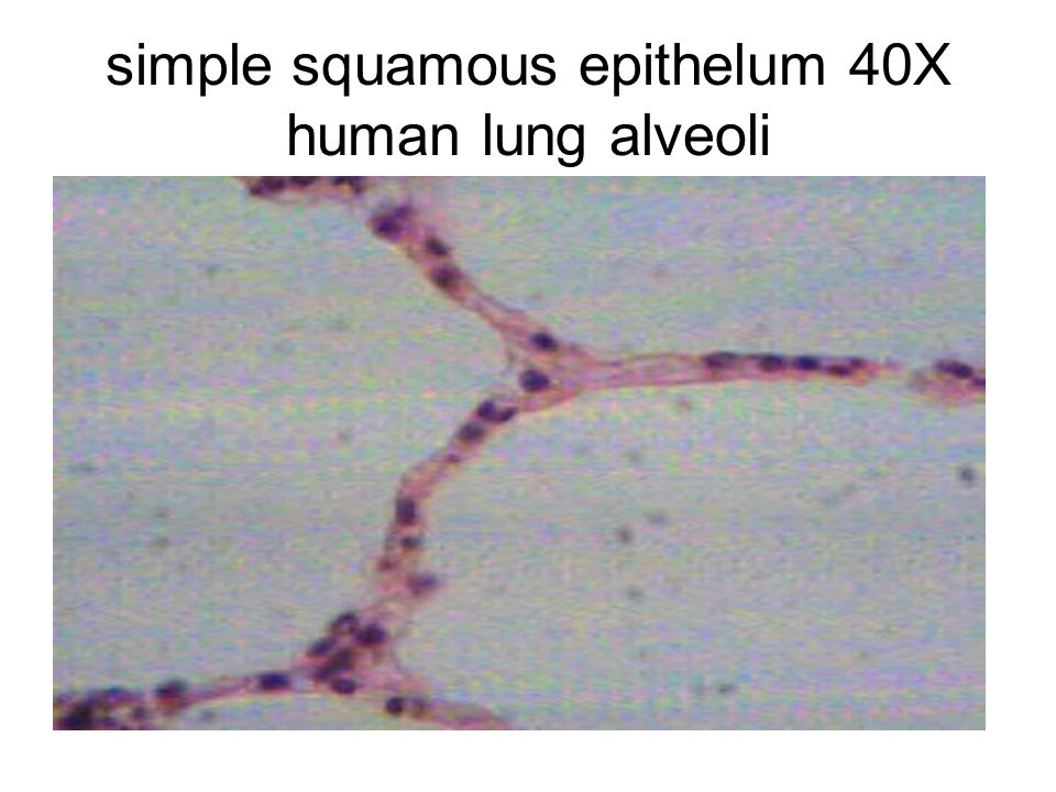 simple squamous epithelum 40X human lung alveoli
