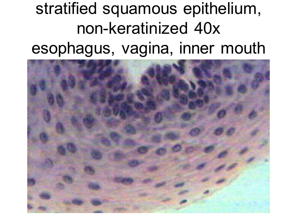 stratified squamous epithelium, non-keratinized 40x esophagus, vagina, inner mouth